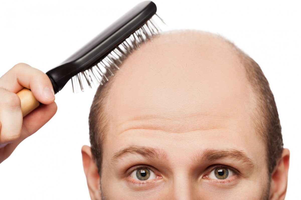 5 Reasons To Choose FUE Over Other Hair Transplants