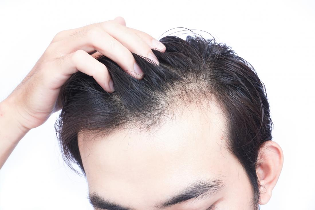 Why Noticeable Hair Transplants Are Again Making A Comeback?