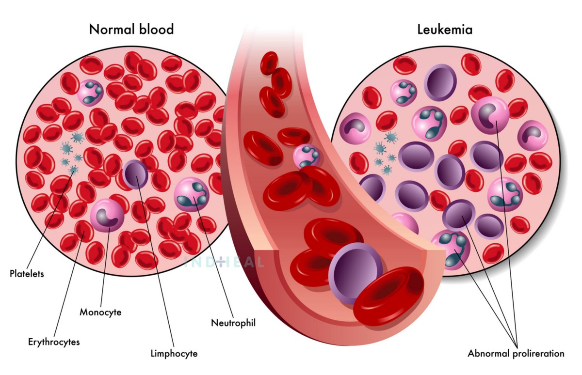 All You Need to Know About Blood Cancer