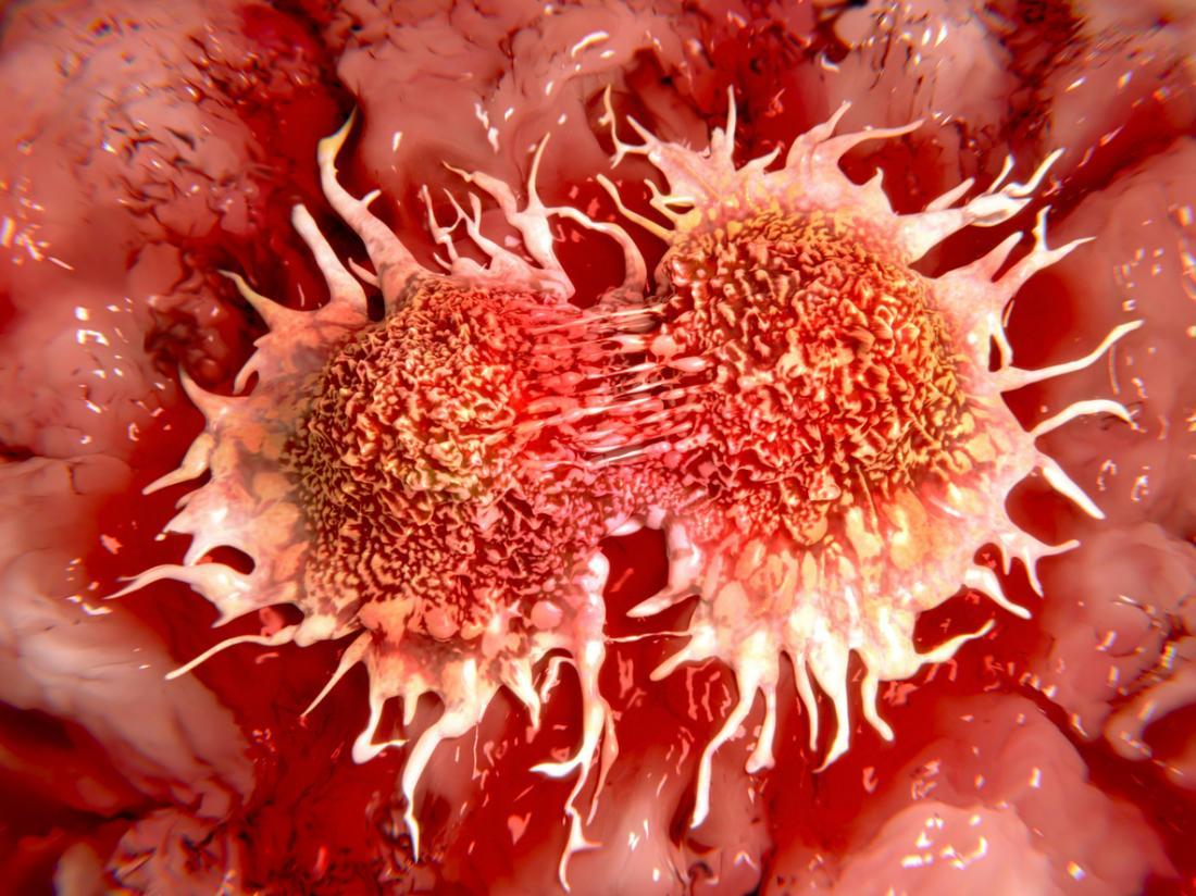 Handling Cancer Symptoms/Side Effects